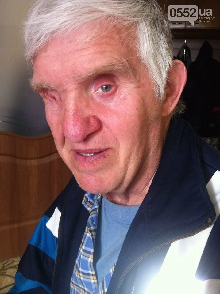 Помогите найти человека: в Херсоне разыскивают дедушку с особой приметой, фото-1