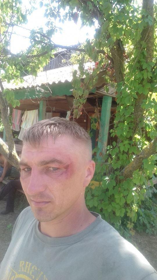 На Херсонщине патрульные избили ветеранов АТО? Кто прав?, фото-1