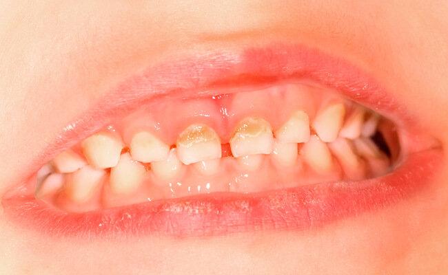 Кариес молочных зубов – это проблема?, фото-1